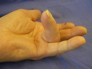 Finger knubbel Knoten in