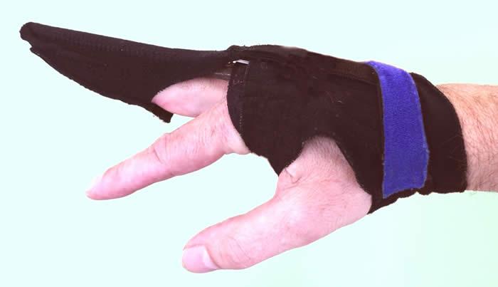 Dynamic splint applied to the hand.