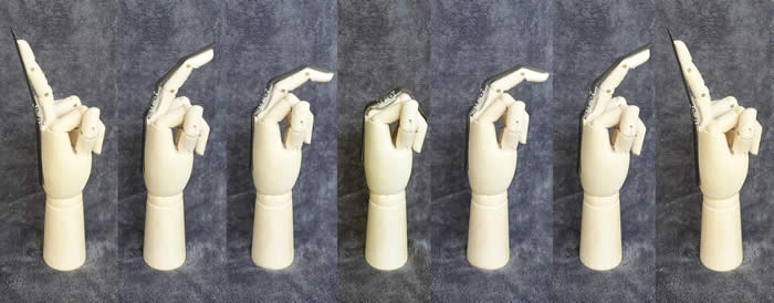 Basic operation of a dynamic splint