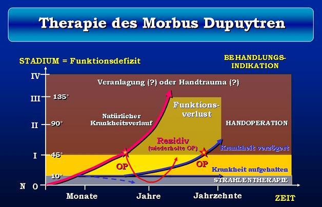 Strahlentherapie Der Dupuytren Krankheit